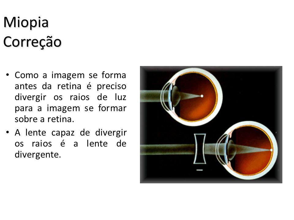 Miopia A miopia se caracteriza pela dificuldade de enxergar objetos distantes. A imagem se forma antes da retina. Ocorre devido a um cristalino muito