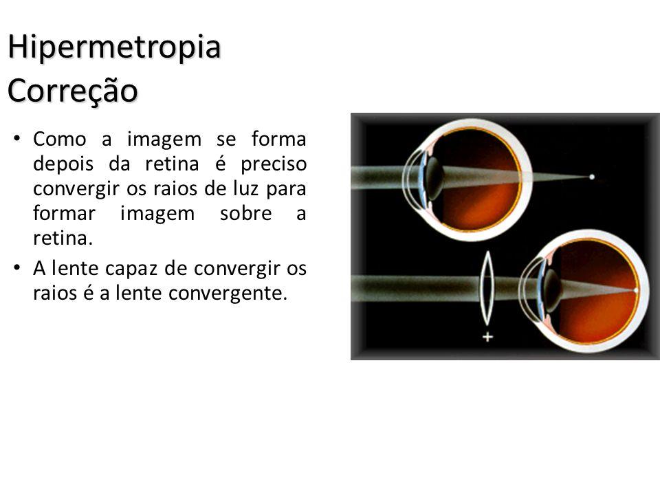 Hipermetropia Hipermetropia A hipermetropia se caracteriza pela dificuldade de enxergar objetos muito próximos do olho. A imagem se forma depois da re