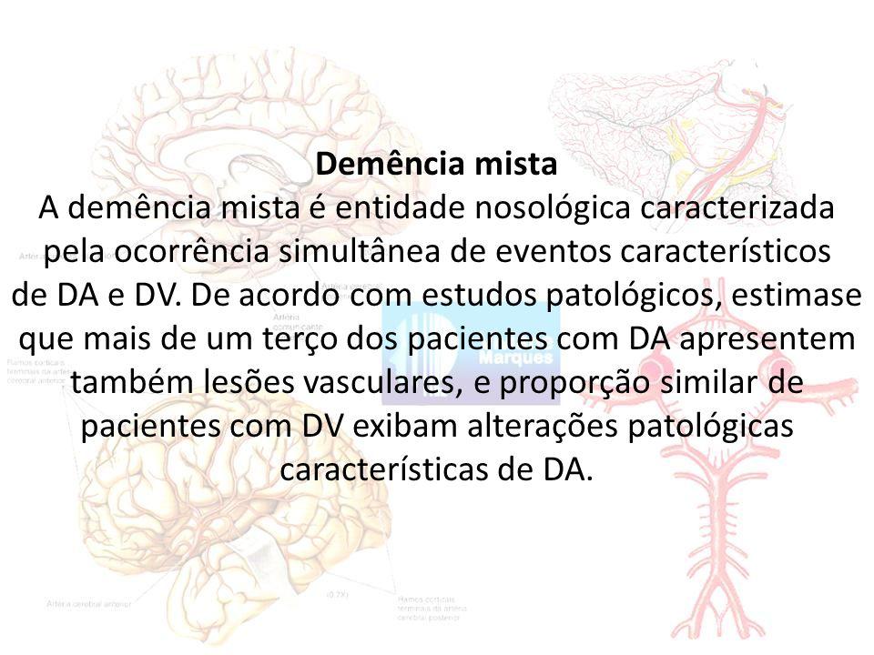 Demência mista A demência mista é entidade nosológica caracterizada pela ocorrência simultânea de eventos característicos de DA e DV.