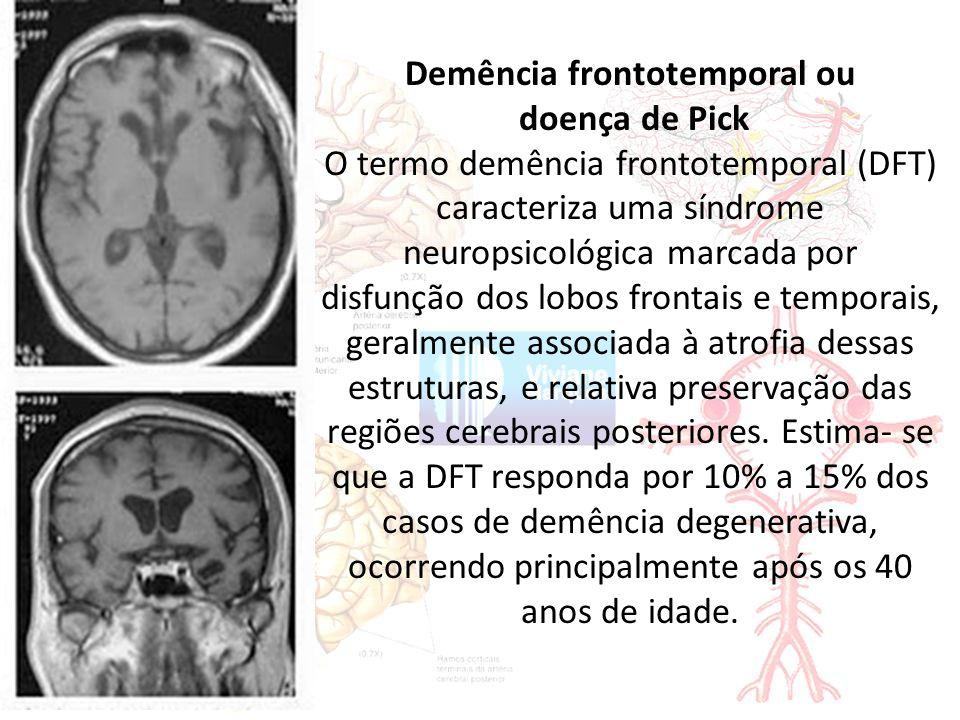 Demência frontotemporal ou doença de Pick O termo demência frontotemporal (DFT) caracteriza uma síndrome neuropsicológica marcada por disfunção dos lobos frontais e temporais, geralmente associada à atrofia dessas estruturas, e relativa preservação das regiões cerebrais posteriores.