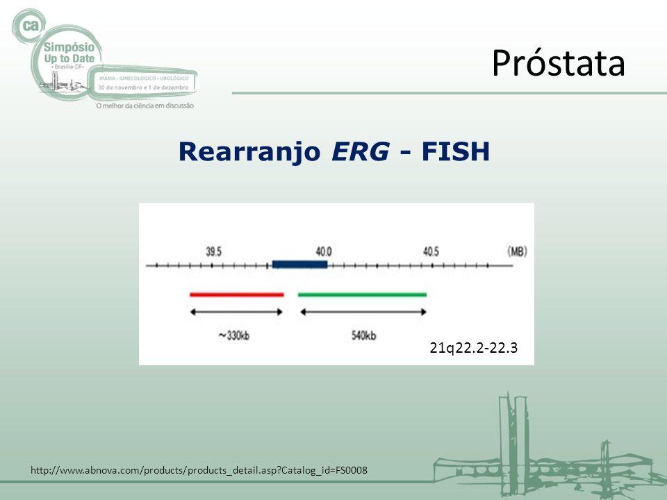 Próstata Rearranjo ERG - FISH http://www.abnova.com/products/products_detail.asp?Catalog_id=FS0008 21q22.2-22.3