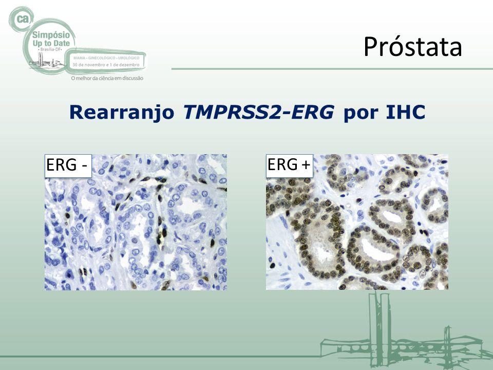 Próstata Rearranjo TMPRSS2-ERG por IHC ERG - ERG +
