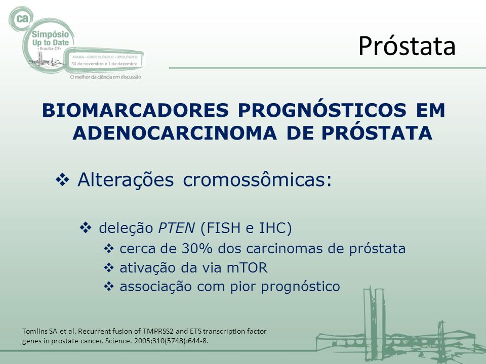 BIOMARCADORES PROGNÓSTICOS EM ADENOCARCINOMA DE PRÓSTATA Alterações cromossômicas: deleção PTEN (FISH e IHC) cerca de 30% dos carcinomas de próstata ativação da via mTOR associação com pior prognóstico Próstata Tomlins SA et al.
