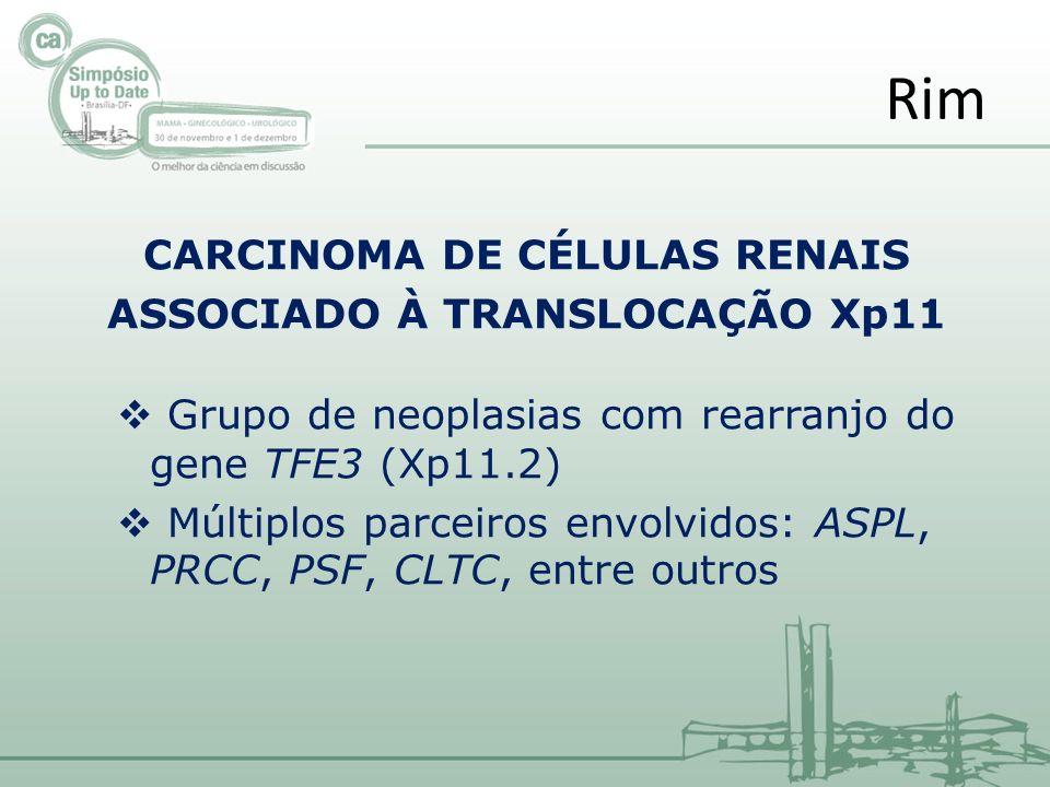 CARCINOMA DE CÉLULAS RENAIS ASSOCIADO À TRANSLOCAÇÃO Xp11 Grupo de neoplasias com rearranjo do gene TFE3(Xp11.2) Múltiplos parceiros envolvidos: ASPL, PRCC, PSF, CLTC, entre outros Rim