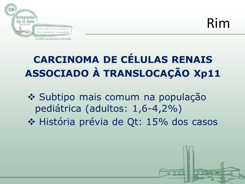 CARCINOMA DE CÉLULAS RENAIS ASSOCIADO À TRANSLOCAÇÃO Xp11 Subtipo mais comum na população pediátrica (adultos: 1,6-4,2%) História prévia de Qt: 15% do