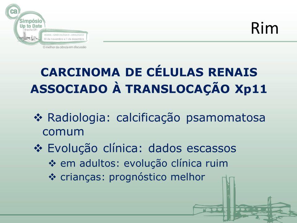 CARCINOMA DE CÉLULAS RENAIS ASSOCIADO À TRANSLOCAÇÃO Xp11 Radiologia: calcificação psamomatosa comum Evolução clínica: dados escassos em adultos: evol