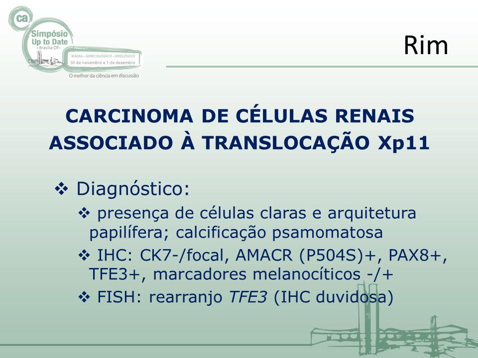 CARCINOMA DE CÉLULAS RENAIS ASSOCIADO À TRANSLOCAÇÃO Xp11 Diagnóstico: presença de células claras e arquitetura papilífera; calcificação psamomatosa IHC: CK7-/focal, AMACR (P504S)+, PAX8+, TFE3+, marcadores melanocíticos -/+ FISH: rearranjo TFE3 (IHC duvidosa) Rim