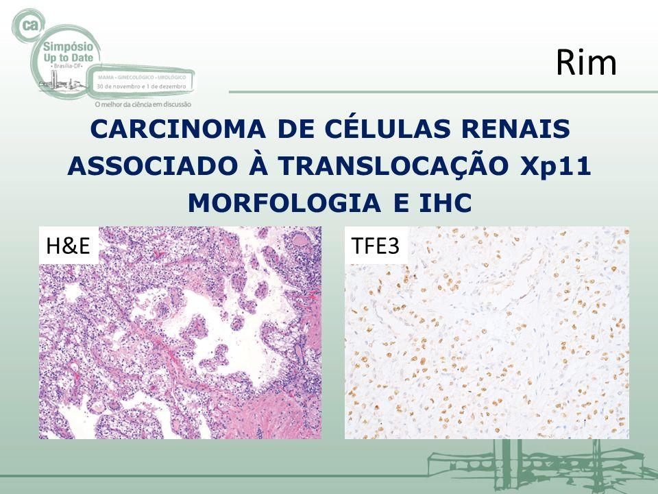 CARCINOMA DE CÉLULAS RENAIS ASSOCIADO À TRANSLOCAÇÃO Xp11 MORFOLOGIA E IHC Rim H&ETFE3