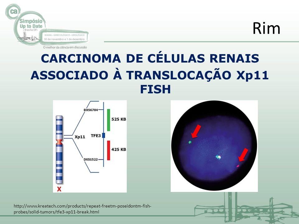 CARCINOMA DE CÉLULAS RENAIS ASSOCIADO À TRANSLOCAÇÃO Xp11 FISH Rim http://www.kreatech.com/products/repeat-freetm-poseidontm-fish- probes/solid-tumors/tfe3-xp11-break.html