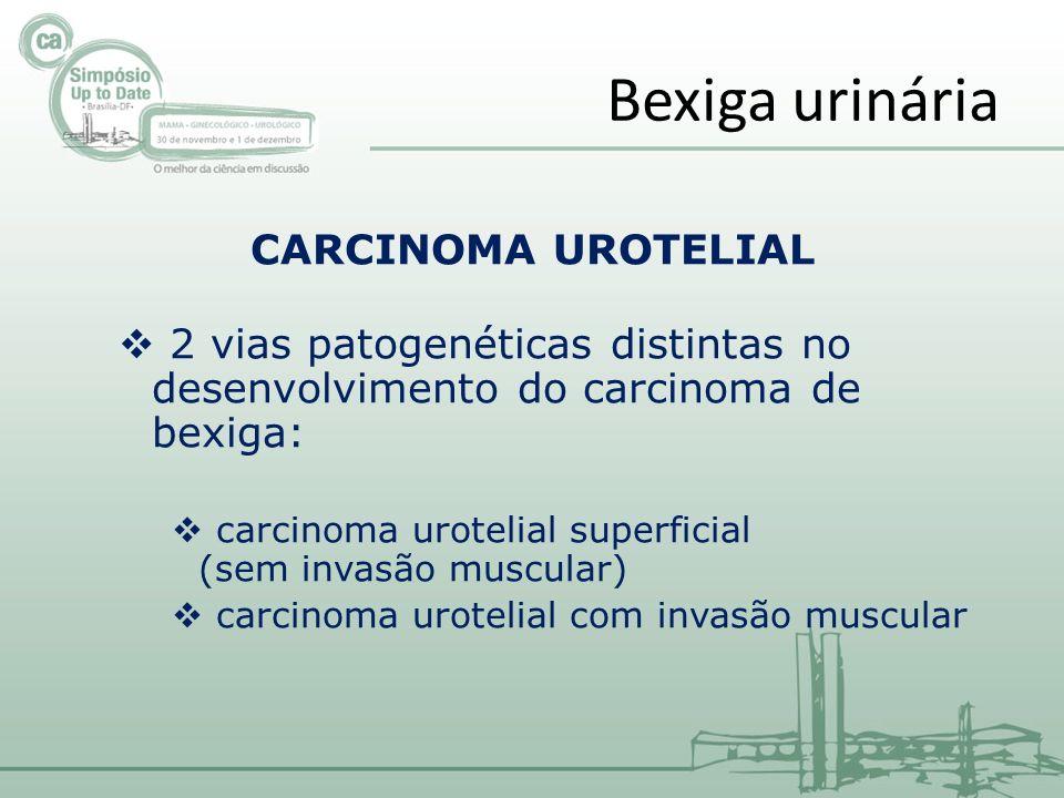 CARCINOMA UROTELIAL 2 vias patogenéticas distintas no desenvolvimento do carcinoma de bexiga: carcinoma urotelial superficial (sem invasão muscular) carcinoma urotelial com invasão muscular Bexiga urinária