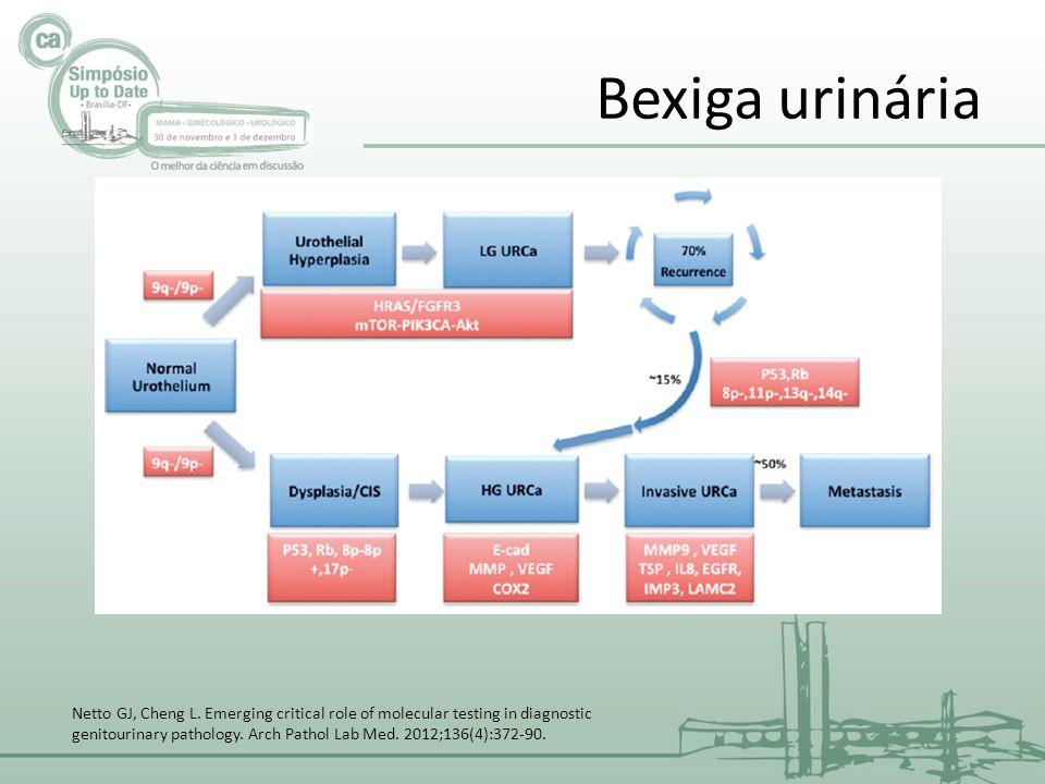 BIOMARCADORES PROGNÓSTICOS EM CARCINOMA UROTELIAL Clinicopatológicos: estadiamento pTNM grau (WHO/ISUP) tamanho do tumor, multifocalidade presença de CIS recorrências (sem invasão muscular) Bexiga urinária