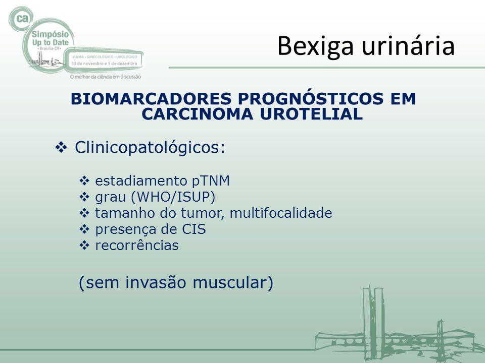 BIOMARCADORES PROGNÓSTICOS EM CARCINOMA UROTELIAL Clinicopatológicos: estadiamento pTNM grau (WHO/ISUP) tamanho do tumor, multifocalidade presença de