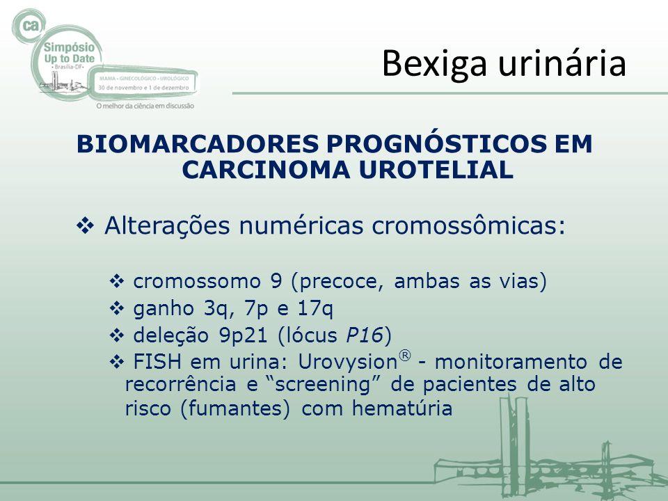 BIOMARCADORES PROGNÓSTICOS EM CARCINOMA UROTELIAL Alterações numéricas cromossômicas: cromossomo 9 (precoce, ambas as vias) ganho 3q, 7p e 17q deleção 9p21 (lócus P16) FISH em urina: Urovysion ® - monitoramento de recorrência e screening de pacientes de alto risco (fumantes) com hematúria Bexiga urinária