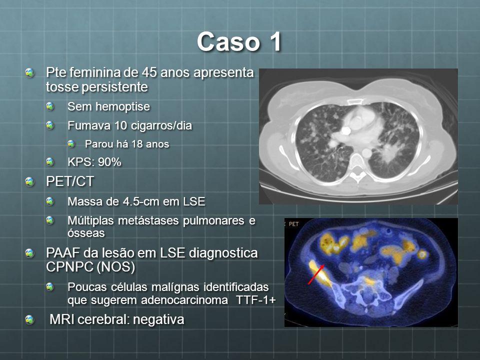Caso 1 Pte feminina de 45 anos apresenta tosse persistente Sem hemoptise Fumava 10 cigarros/dia Parou há 18 anos KPS: 90% PET/CT Massa de 4.5-cm em LS