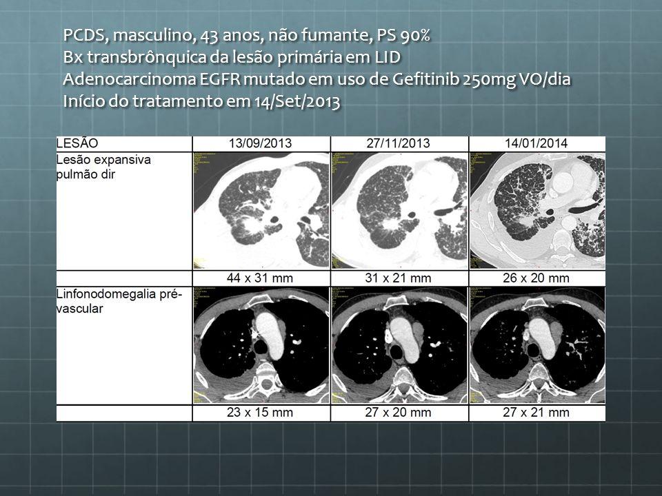 PCDS, masculino, 43 anos, não fumante, PS 90% Bx transbrônquica da lesão primária em LID Adenocarcinoma EGFR mutado em uso de Gefitinib 250mg VO/dia I