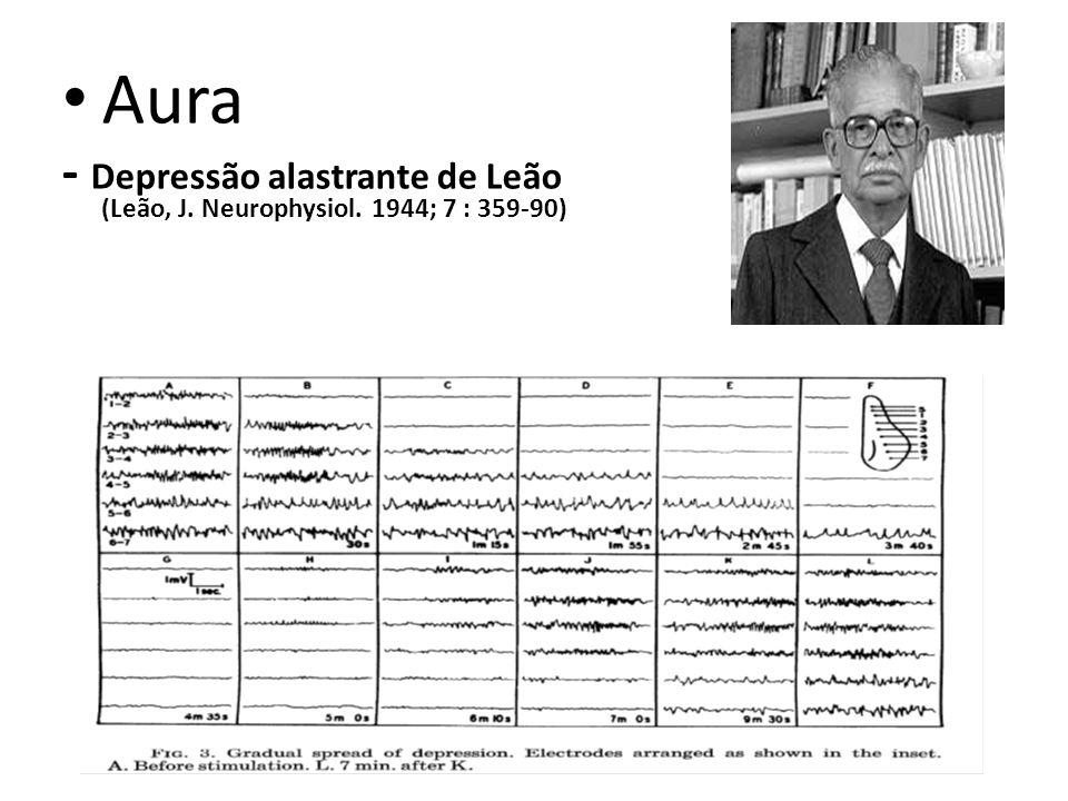 Aura - Depressão alastrante de Leão (Leão, J. Neurophysiol. 1944; 7 : 359-90)