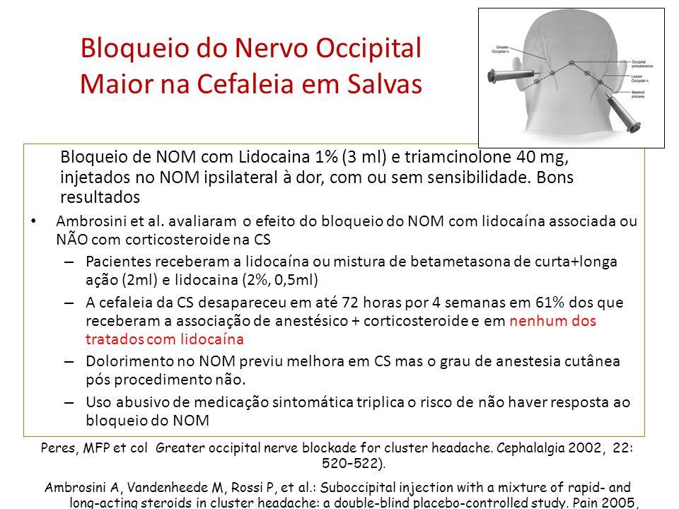 Bloqueio do Nervo Occipital Maior na Cefaleia em Salvas Bloqueio de NOM com Lidocaina 1% (3 ml) e triamcinolone 40 mg, injetados no NOM ipsilateral à dor, com ou sem sensibilidade.