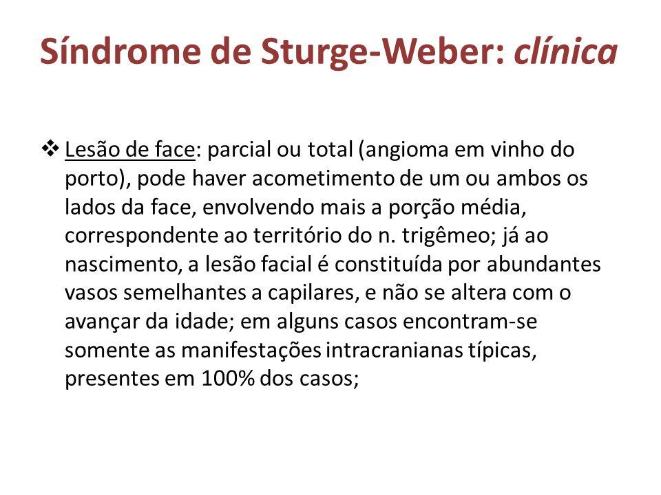 Síndrome de Sturge-Weber: clínica Lesão de face: parcial ou total (angioma em vinho do porto), pode haver acometimento de um ou ambos os lados da face