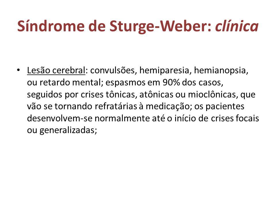 Síndrome de Sturge-Weber: clínica Lesão cerebral: convulsões, hemiparesia, hemianopsia, ou retardo mental; espasmos em 90% dos casos, seguidos por cri