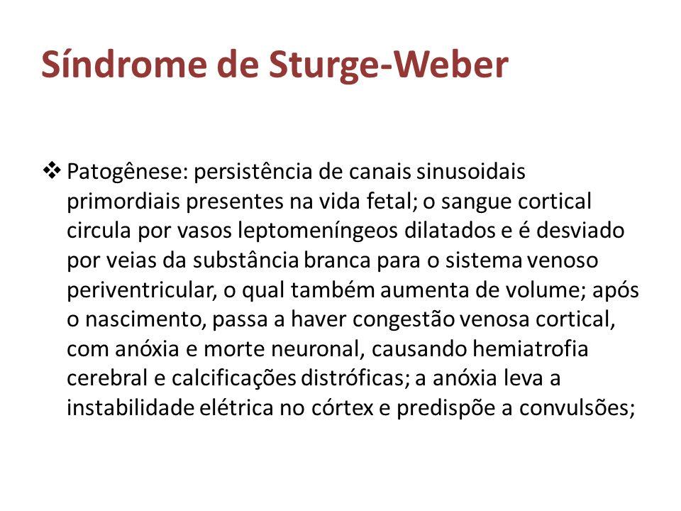 Síndrome de Sturge-Weber Patogênese: persistência de canais sinusoidais primordiais presentes na vida fetal; o sangue cortical circula por vasos lepto
