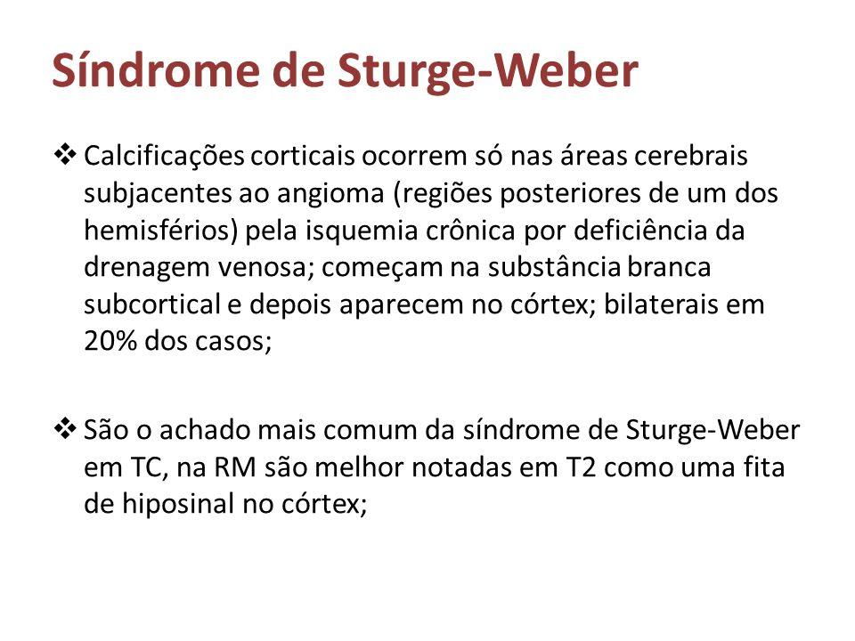 Síndrome de Sturge-Weber Calcificações corticais ocorrem só nas áreas cerebrais subjacentes ao angioma (regiões posteriores de um dos hemisférios) pel