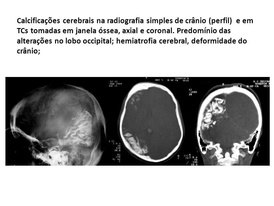 Calcificações cerebrais na radiografia simples de crânio (perfil) e em TCs tomadas em janela óssea, axial e coronal. Predomínio das alterações no lobo