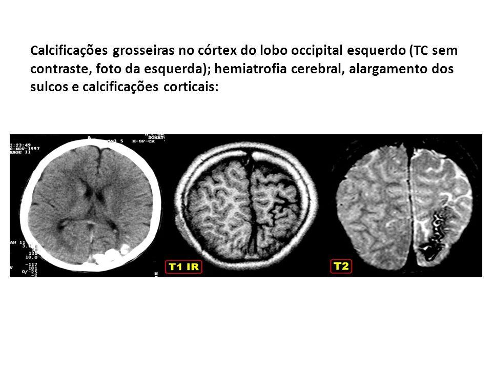 Calcificações grosseiras no córtex do lobo occipital esquerdo (TC sem contraste, foto da esquerda); hemiatrofia cerebral, alargamento dos sulcos e cal