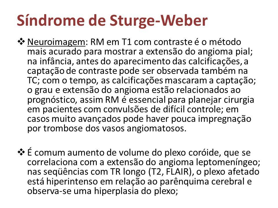 Síndrome de Sturge-Weber Neuroimagem: RM em T1 com contraste é o método mais acurado para mostrar a extensão do angioma pial; na infância, antes do ap