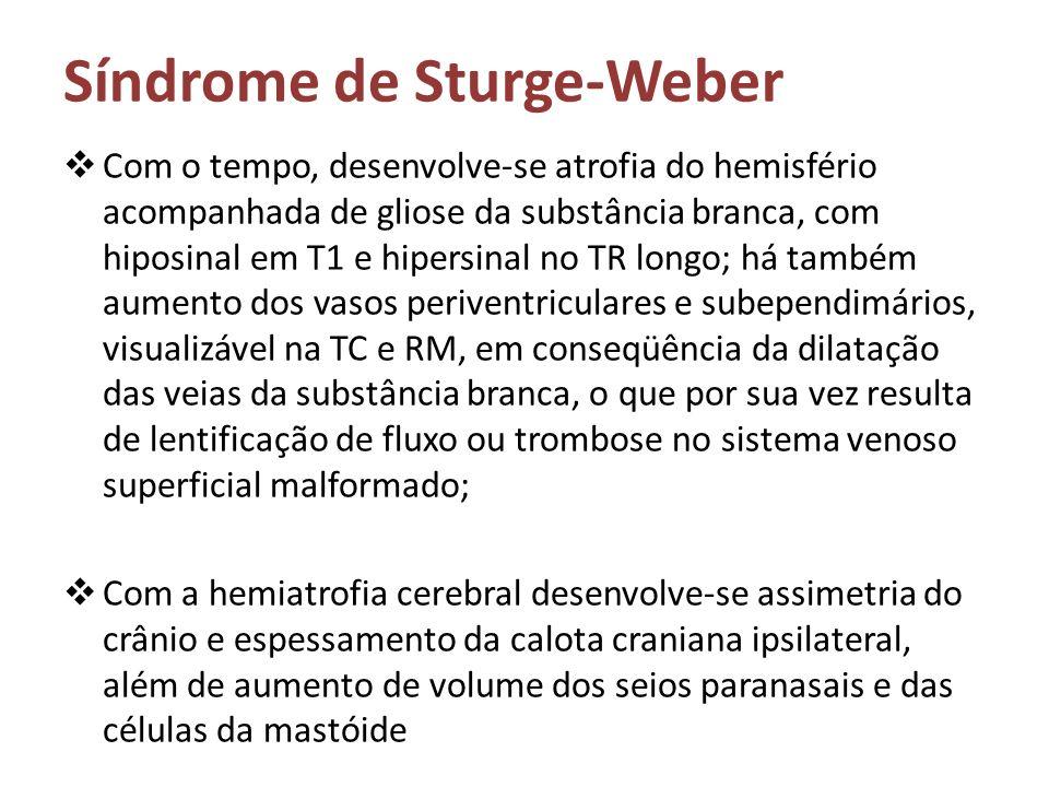 Síndrome de Sturge-Weber Com o tempo, desenvolve-se atrofia do hemisfério acompanhada de gliose da substância branca, com hiposinal em T1 e hipersinal