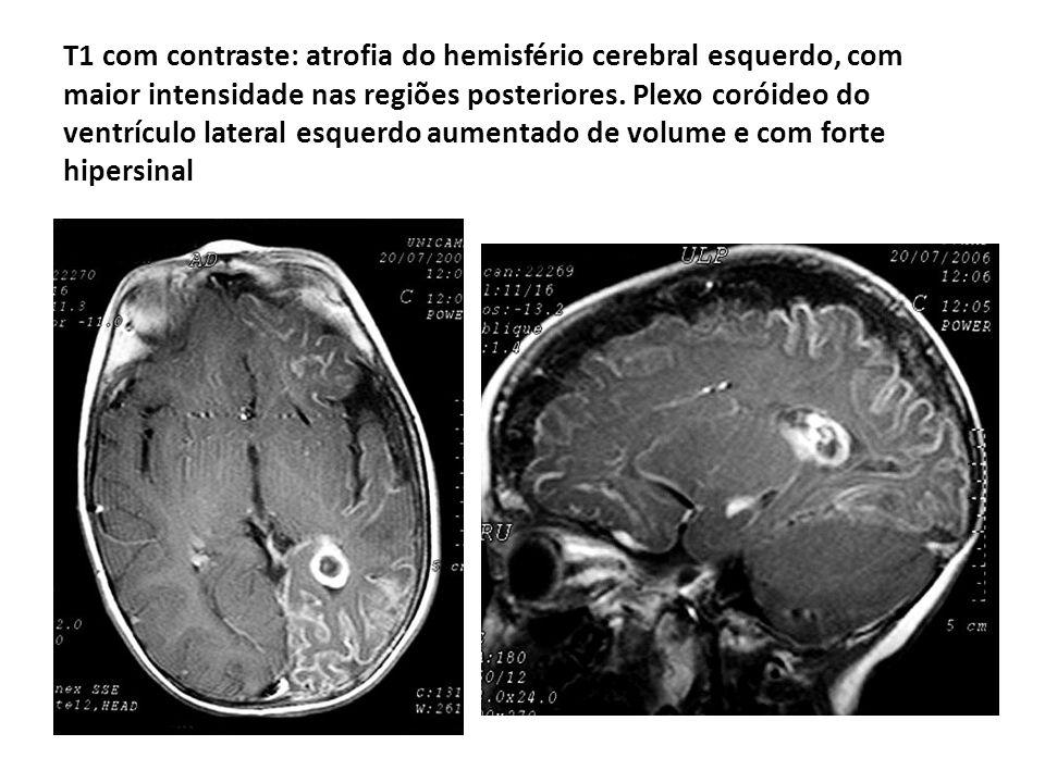 T1 com contraste: atrofia do hemisfério cerebral esquerdo, com maior intensidade nas regiões posteriores. Plexo coróideo do ventrículo lateral esquerd