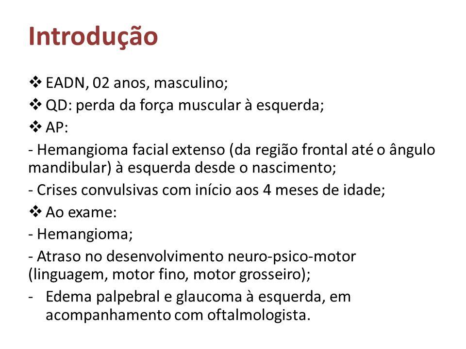 Introdução EADN, 02 anos, masculino; QD: perda da força muscular à esquerda; AP: - Hemangioma facial extenso (da região frontal até o ângulo mandibula