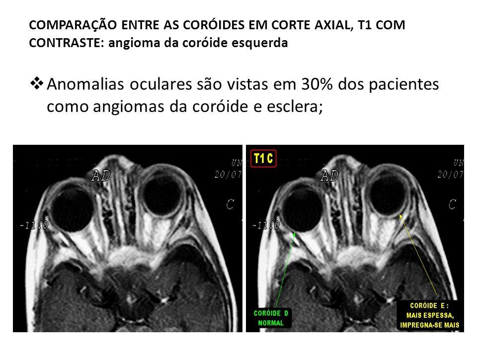 COMPARAÇÃO ENTRE AS CORÓIDES EM CORTE AXIAL, T1 COM CONTRASTE: angioma da coróide esquerda Anomalias oculares são vistas em 30% dos pacientes como ang