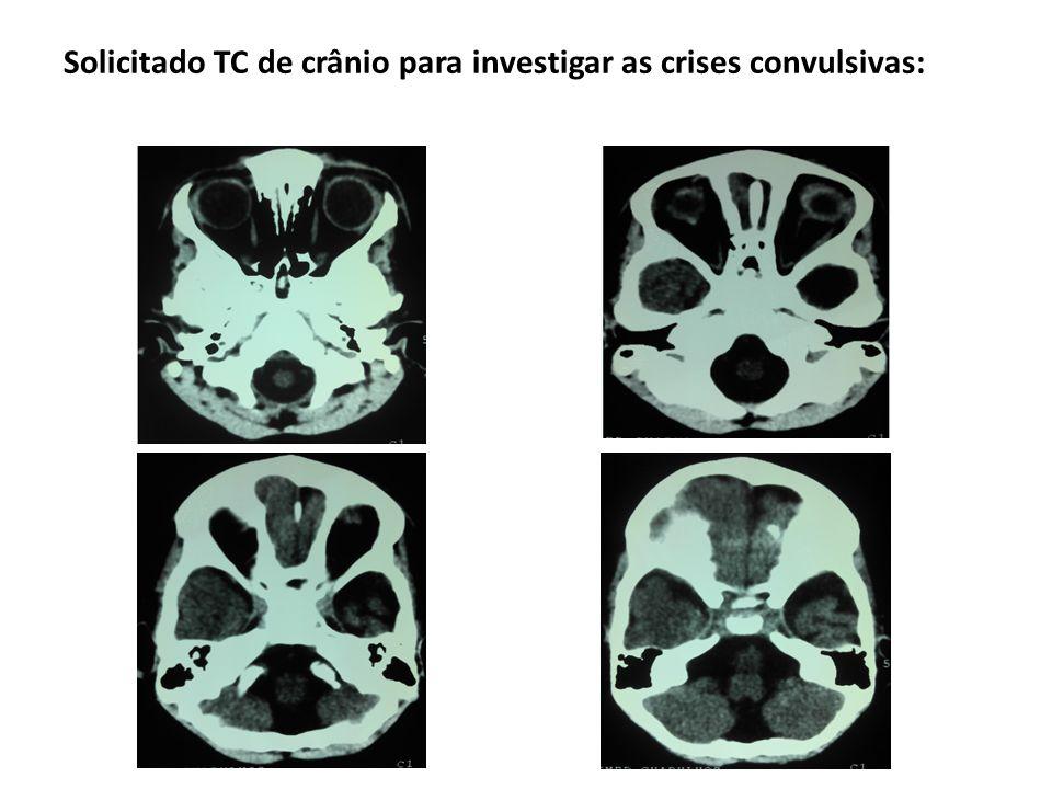 Síndrome de Sturge-Weber Calcificações corticais ocorrem só nas áreas cerebrais subjacentes ao angioma (regiões posteriores de um dos hemisférios) pela isquemia crônica por deficiência da drenagem venosa; começam na substância branca subcortical e depois aparecem no córtex; bilaterais em 20% dos casos; São o achado mais comum da síndrome de Sturge-Weber em TC, na RM são melhor notadas em T2 como uma fita de hiposinal no córtex;
