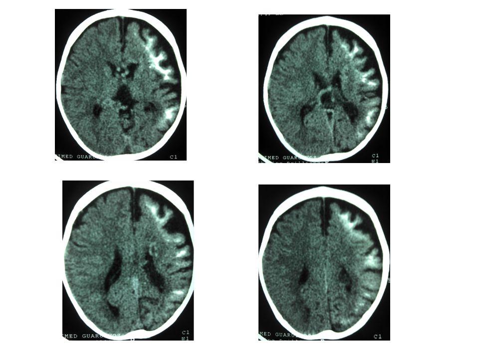 Síndrome de Sturge-Weber Neuroimagem: RM em T1 com contraste é o método mais acurado para mostrar a extensão do angioma pial; na infância, antes do aparecimento das calcificações, a captação de contraste pode ser observada também na TC; com o tempo, as calcificações mascaram a captação; o grau e extensão do angioma estão relacionados ao prognóstico, assim RM é essencial para planejar cirurgia em pacientes com convulsões de difícil controle; em casos muito avançados pode haver pouca impregnação por trombose dos vasos angiomatosos.