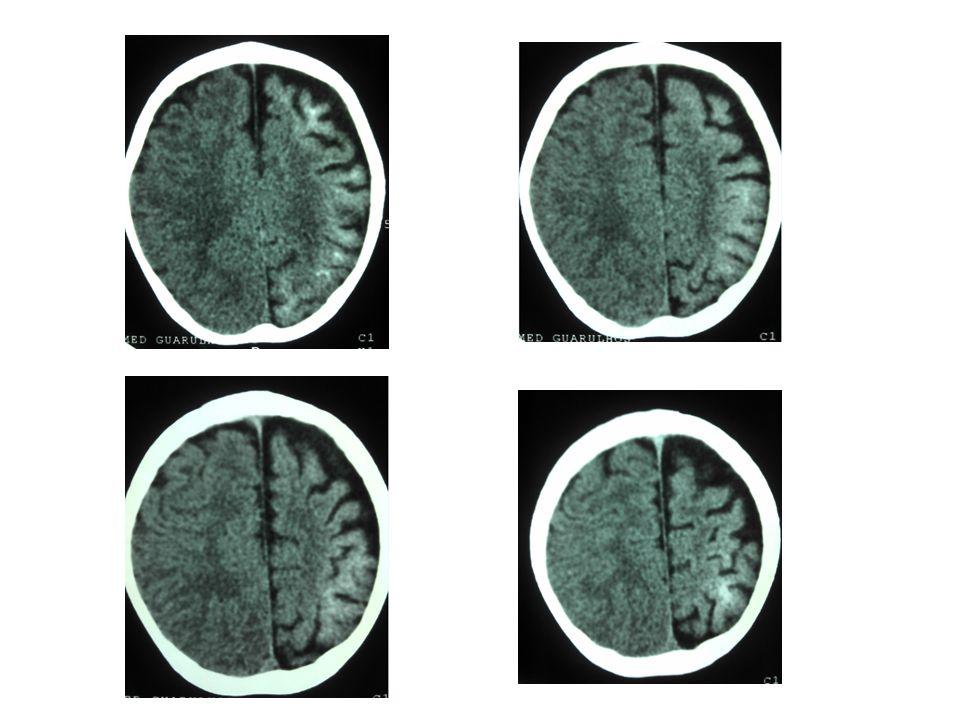 Síndrome de Sturge-Weber Com o tempo, desenvolve-se atrofia do hemisfério acompanhada de gliose da substância branca, com hiposinal em T1 e hipersinal no TR longo; há também aumento dos vasos periventriculares e subependimários, visualizável na TC e RM, em conseqüência da dilatação das veias da substância branca, o que por sua vez resulta de lentificação de fluxo ou trombose no sistema venoso superficial malformado; Com a hemiatrofia cerebral desenvolve-se assimetria do crânio e espessamento da calota craniana ipsilateral, além de aumento de volume dos seios paranasais e das células da mastóide