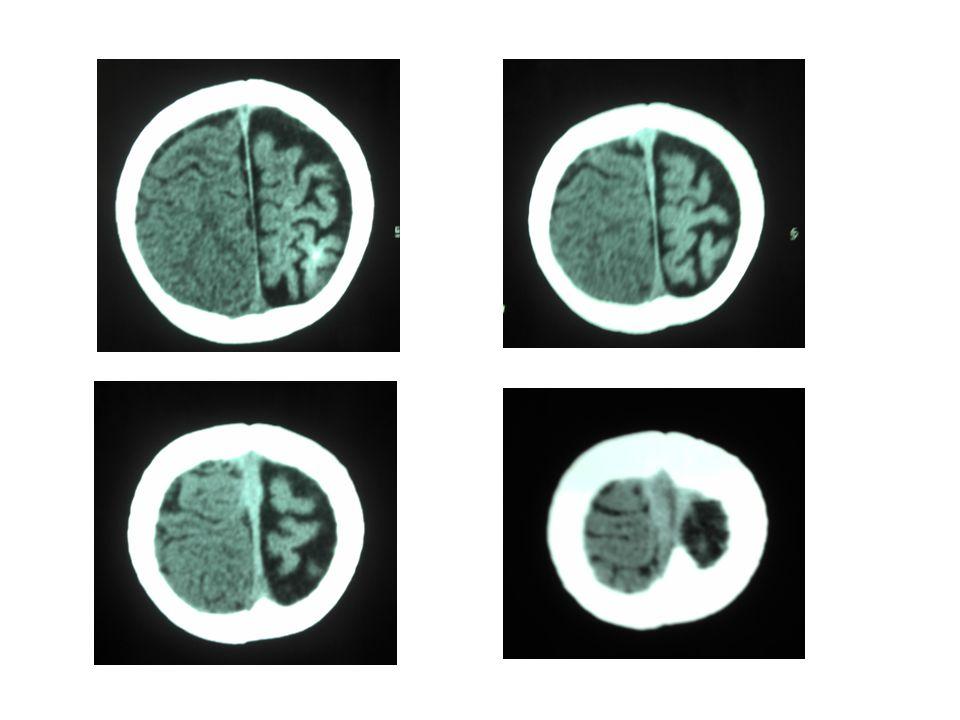 Resultado do exame Áreas hiperatenuantes na substância branca subcortical e cortical fronto-temporo-parieto- occipital esquerdo; Alargamento de sulcos corticais e fissuras encefálicas à esquerda; Hipoatenução da substância branca dos centros semi-ovais e periventriculares, compatíveis com gliose / microangiopatias; Leve dilatação do sistema ventricular supratentorial; Opinião: Síndrome de Sturge-Weber.