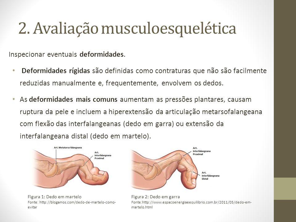 2. Avaliação musculoesquelética Inspecionar eventuais deformidades. Deformidades rígidas são definidas como contraturas que não são facilmente reduzid