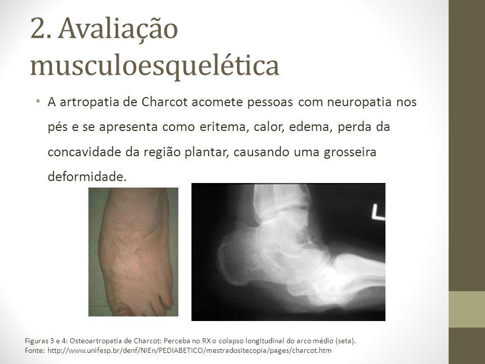2. Avaliação musculoesquelética A artropatia de Charcot acomete pessoas com neuropatia nos pés e se apresenta como eritema, calor, edema, perda da con