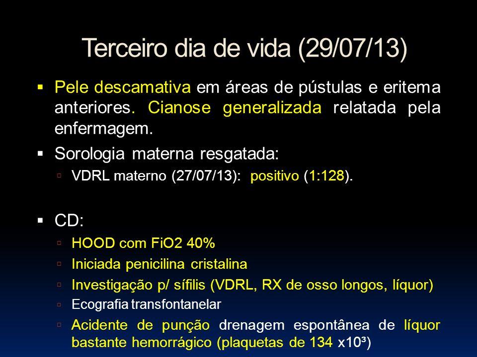 Terceiro dia de vida (29/07/13) Pele descamativa em áreas de pústulas e eritema anteriores. Cianose generalizada relatada pela enfermagem. Sorologia m