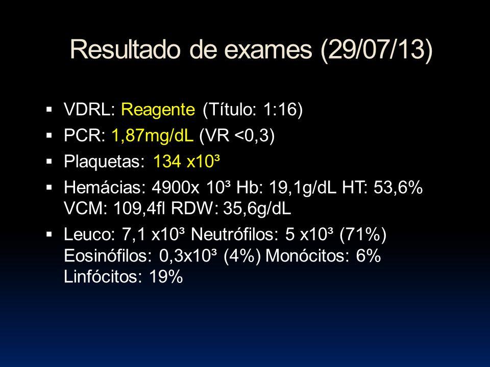 Resultado de exames (29/07/13) VDRL: Reagente (Título: 1:16) PCR: 1,87mg/dL (VR <0,3) Plaquetas: 134 x10³ Hemácias: 4900x 10³ Hb: 19,1g/dL HT: 53,6% VCM: 109,4fl RDW: 35,6g/dL Leuco: 7,1 x10³ Neutrófilos: 5 x10³ (71%) Eosinófilos: 0,3x10³ (4%) Monócitos: 6% Linfócitos: 19%