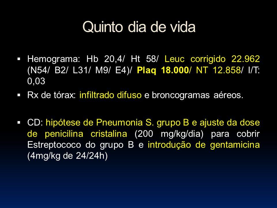 Quinto dia de vida Hemograma: Hb 20,4/ Ht 58/ Leuc corrigido 22.962 (N54/ B2/ L31/ M9/ E4)/ Plaq 18.000/ NT 12.858/ I/T: 0,03 Rx de tórax: infiltrado difuso e broncogramas aéreos.