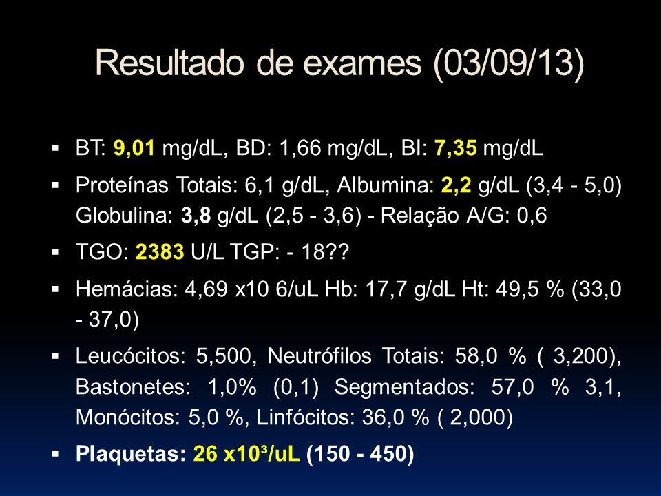Resultado de exames (03/09/13) BT: 9,01 mg/dL, BD: 1,66 mg/dL, BI: 7,35 mg/dL Proteínas Totais: 6,1 g/dL, Albumina: 2,2 g/dL (3,4 - 5,0) Globulina: 3,8 g/dL (2,5 - 3,6) - Relação A/G: 0,6 TGO: 2383 U/L TGP: - 18?.