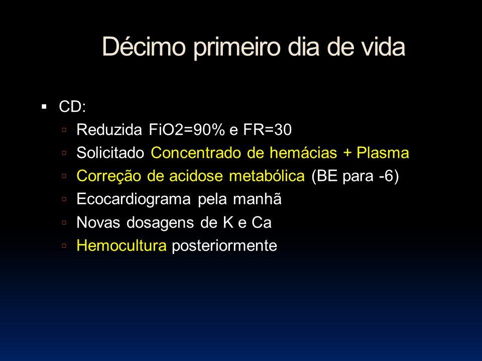 Décimo primeiro dia de vida CD: Reduzida FiO2=90% e FR=30 Solicitado Concentrado de hemácias + Plasma Correção de acidose metabólica (BE para -6) Ecocardiograma pela manhã Novas dosagens de K e Ca Hemocultura posteriormente