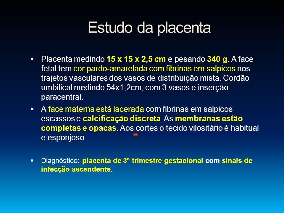 Estudo da placenta Placenta medindo 15 x 15 x 2,5 cm e pesando 340 g. A face fetal tem cor pardo-amarelada com fibrinas em salpicos nos trajetos vascu