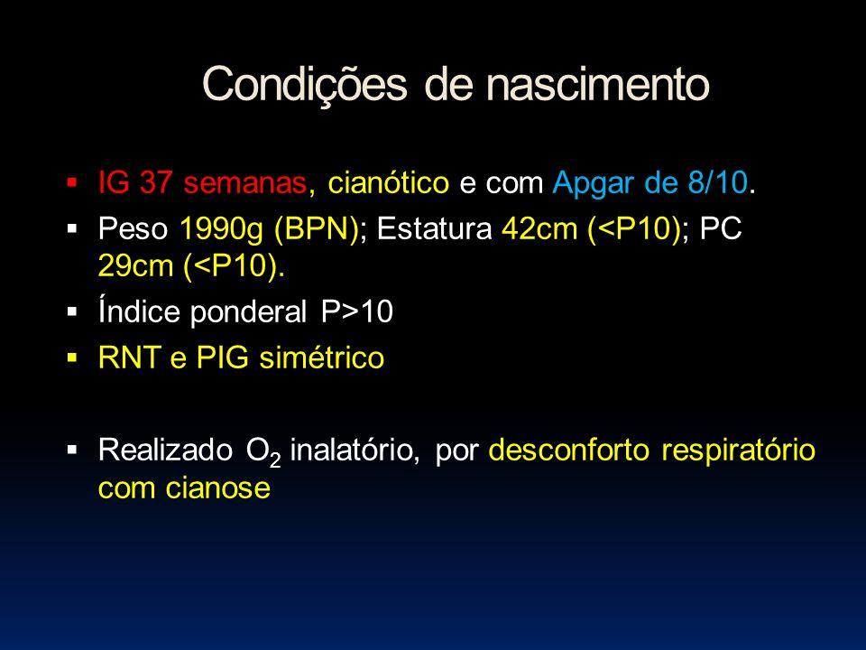 Condições de nascimento IG 37 semanas, cianótico e com Apgar de 8/10. Peso 1990g (BPN); Estatura 42cm (<P10); PC 29cm (<P10). Índice ponderal P>10 RNT
