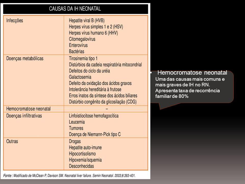 Hemocromatose neonatal Uma das causas mais comuns e mais graves de IH no RN. Apresenta taxa de recorrência familiar de 80%