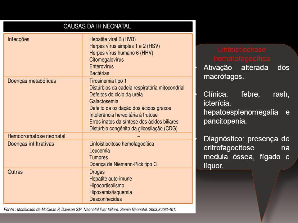 Linfoistiocitose hematofagocítica Ativação alterada dos macrófagos. Clínica: febre, rash, icterícia, hepatoesplenomegalia e pancitopenia. Diagnóstico: