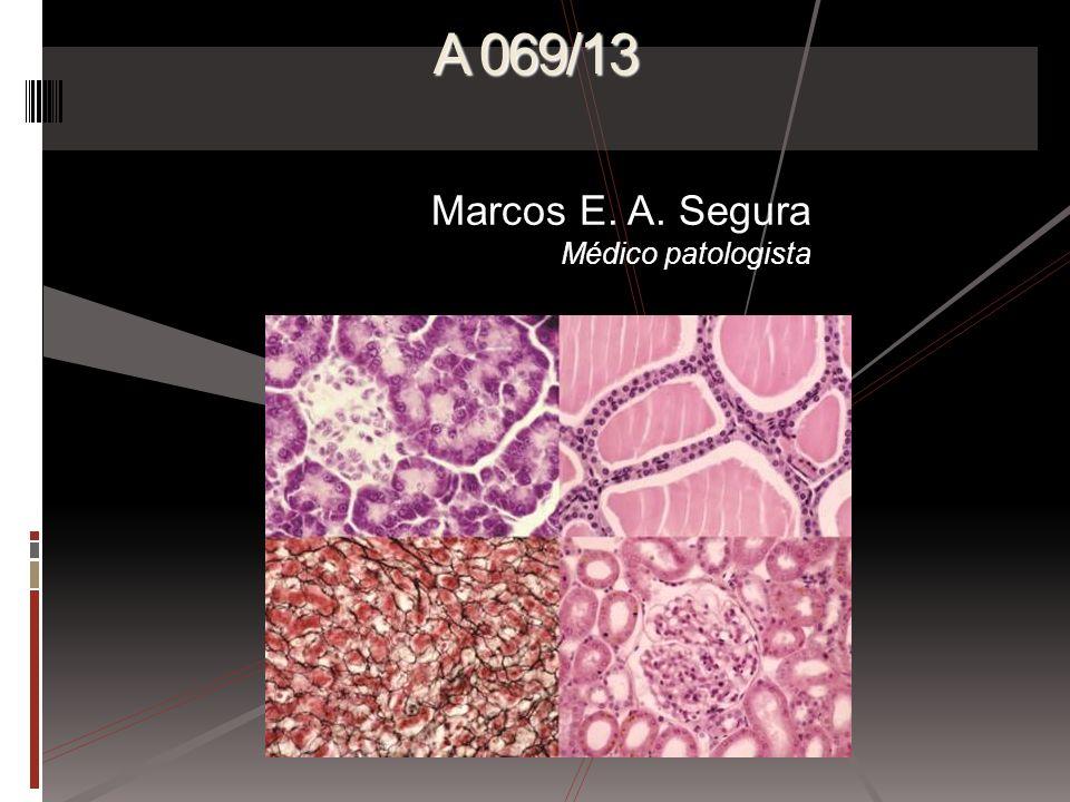A 069/13 Marcos E. A. Segura Médico patologista
