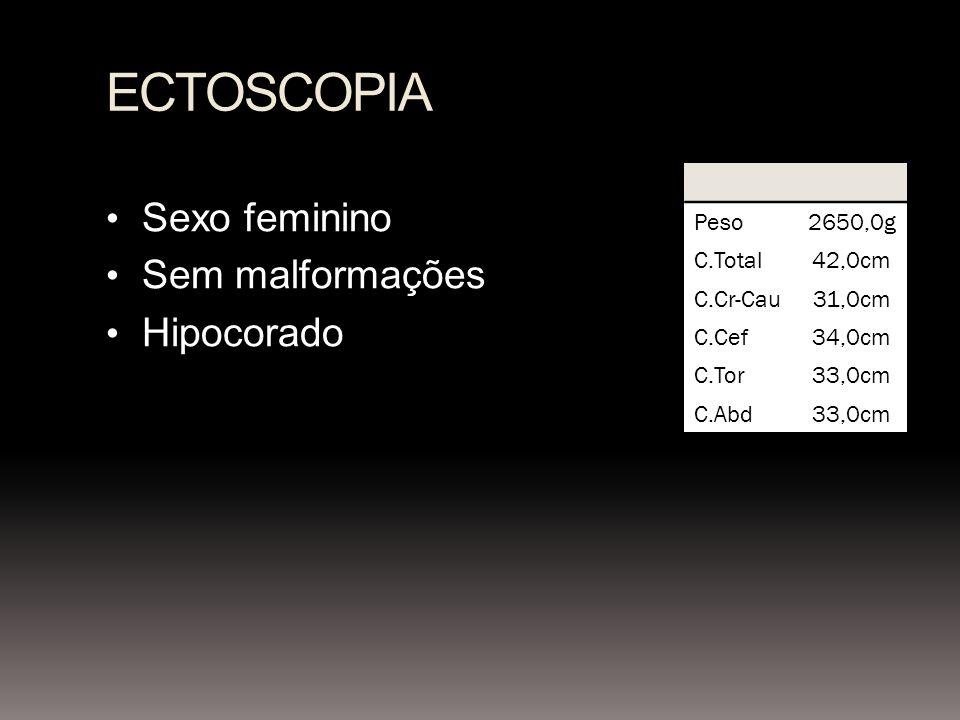 ECTOSCOPIA Sexo feminino Sem malformações Hipocorado Peso2650,0g C.Total42,0cm C.Cr-Cau31,0cm C.Cef34,0cm C.Tor33,0cm C.Abd33,0cm
