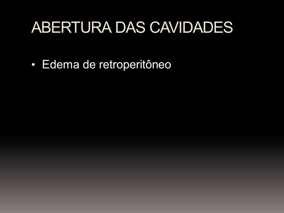 ABERTURA DAS CAVIDADES Edema de retroperitôneo